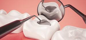 SE Calgary Dental Crowns and Dental Fillings | Walden Family Dental