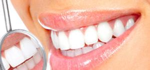 Teeth Whitening | Walden Family Dental