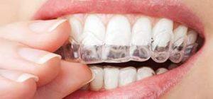 Orthodontics   Walden Family Dental