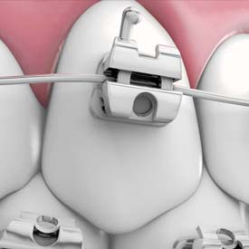 SE Calgary 3M Unitek Braces | Walden Family Dental