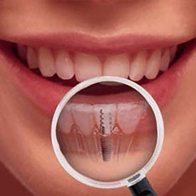 SE Calgary Dental Implants | Walden Family Dental