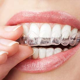 SE Calgary Invisalign Braces | Walden Family Dental