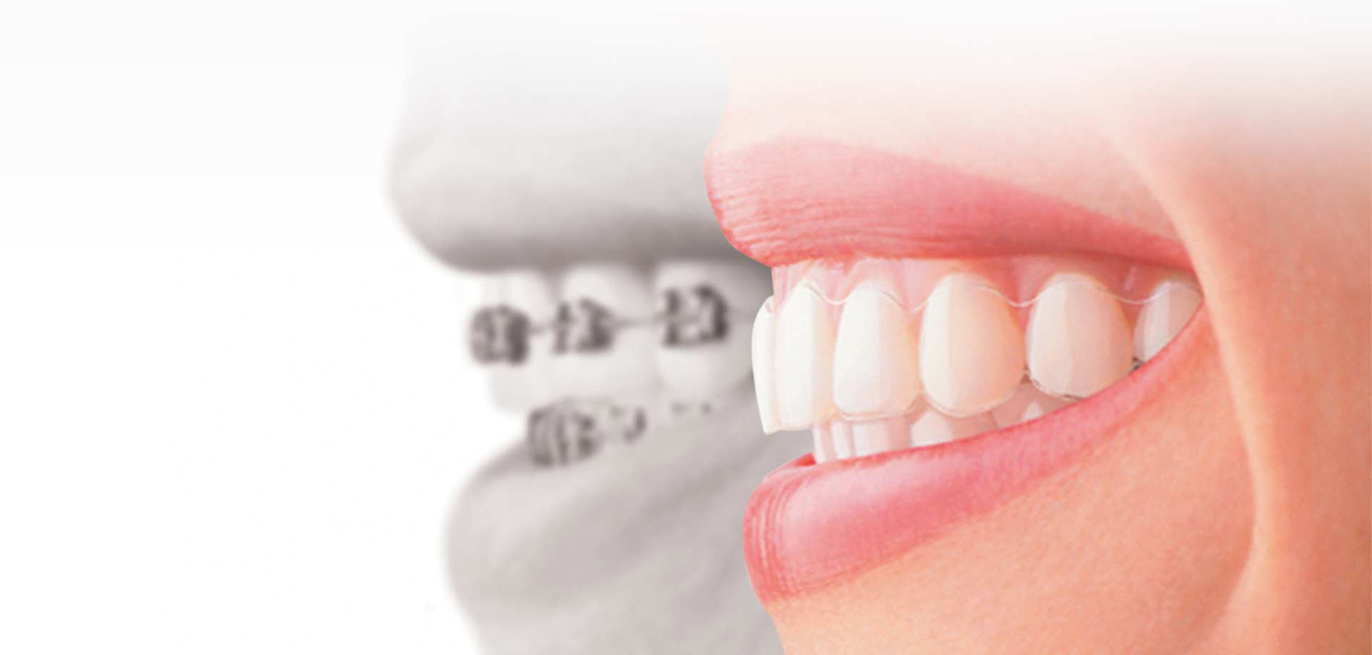 Walden Family Dental Invisalign Braces