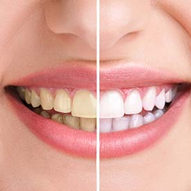 SE Calgary Teeth Whitening | Walden Family Dental